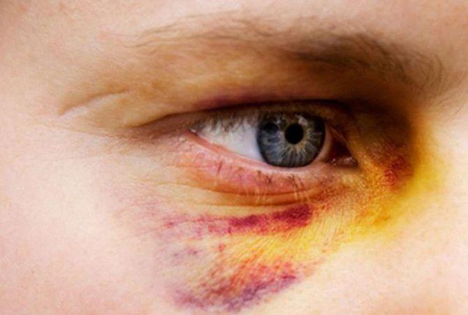 118 ук рф. причинение тяжкого вреда здоровью по неосторожности