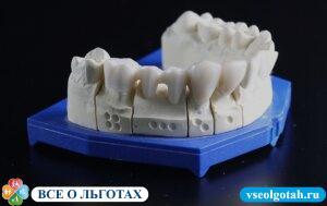 Квота на протезирование зубов: кому положена и как получить - много зубов